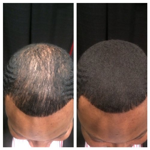 Get Hair Bald Head Naturally
