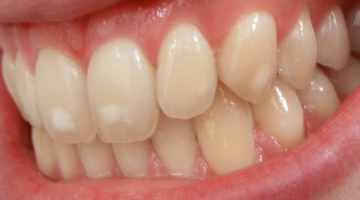 How to Effectively Remove White Spots from Your Teeth